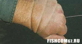 Плетеная леска вокруг руки может нанести травму